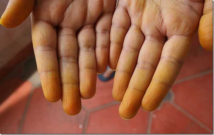 8 Stained hands from non-colourfast gloves